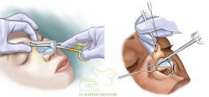 جراحة الأنف