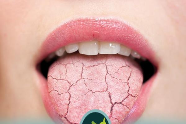درمان خشکی دهان
