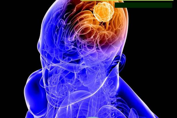 تومورهای قاعده جمجمه